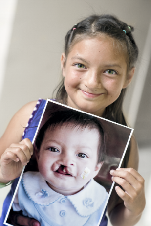 LISTERINE® Operation Smile 2016 tegucigalpa 180 britany